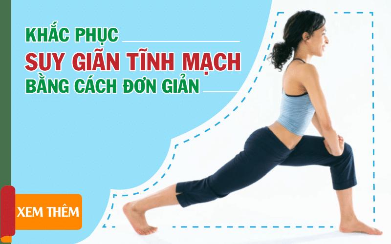 khac-phuc-suy-gian-tinh-mach-chan-bang-cach-don-gian