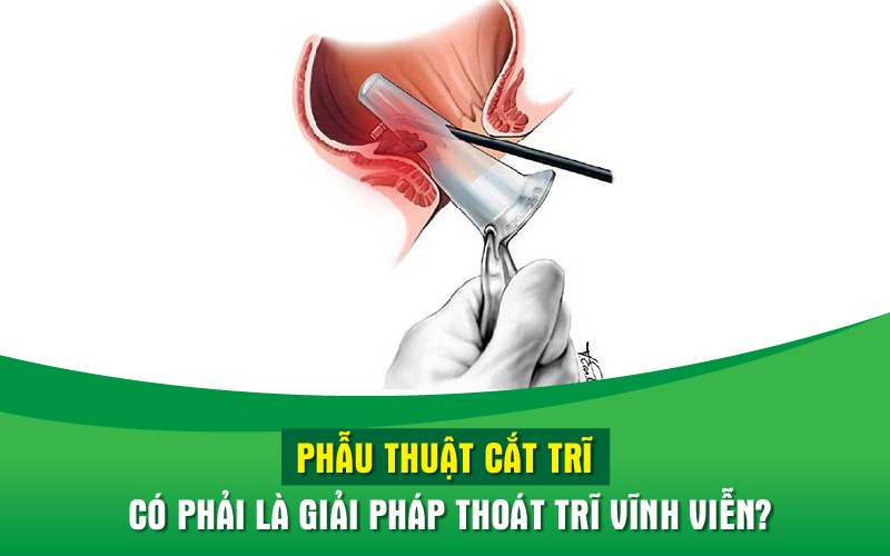 phau-thuat-cat-tri-co-phai-la-giai-phap-thoat-tri-vinh-vien