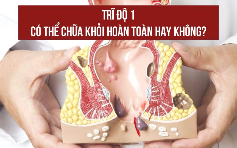 tri-do-1-co-the-chua-khoi-hoan-toan-hay-khong